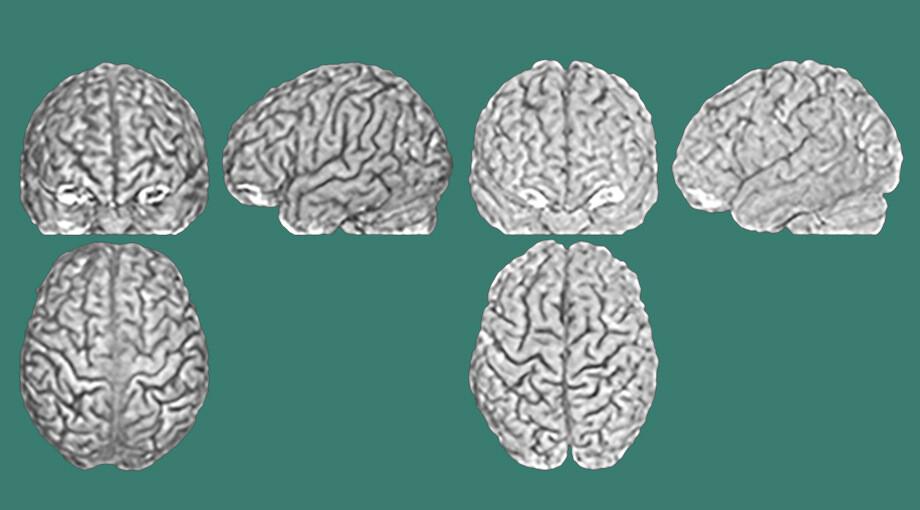 Мозг человека оказался столь же уникален, как отпечаток пальца